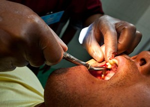 Dentist-performing-a-tooth-extraction-procedure.-300x215